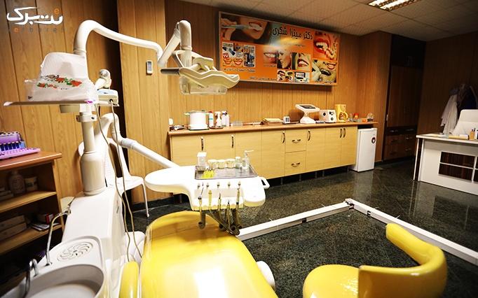جرمگیری و بروساژ دندان در مطب دکتر شکری