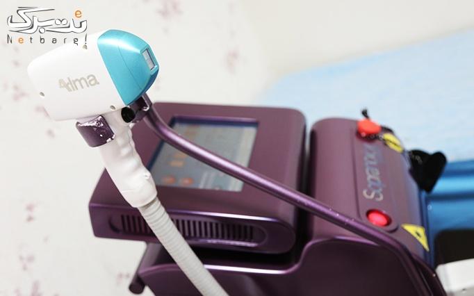 لیزر دایود ویژه نواحی بدن در مطب دکتر آقا میری