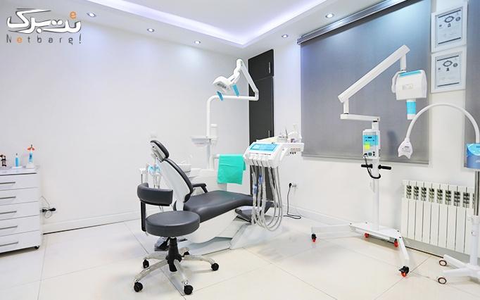 جرمگیری دندان در مطب دکتر داریوش شیروانی