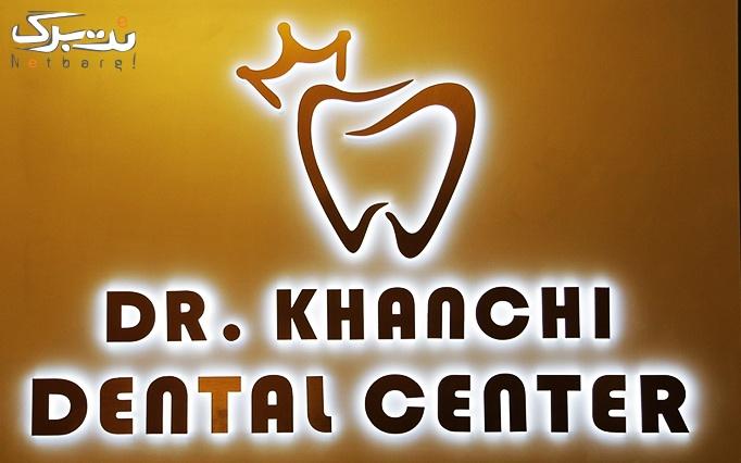 کامپوزیت دندان در مطب دکتر خانچی