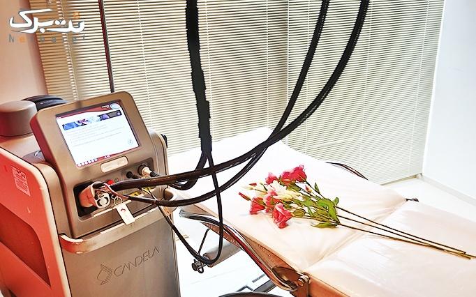 لیزر موهای زائد در مجموعه پزشکی اکسیر