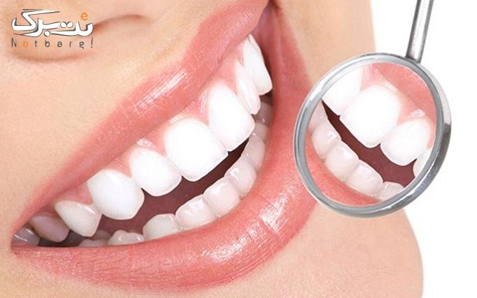 پرکردن دندان (فقط یک دندان) در کلینیک تخصصی رویال