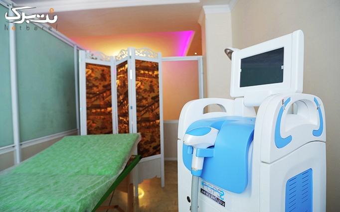 لیزر موهای زائد در مطب دکتر بهشتی منفرد