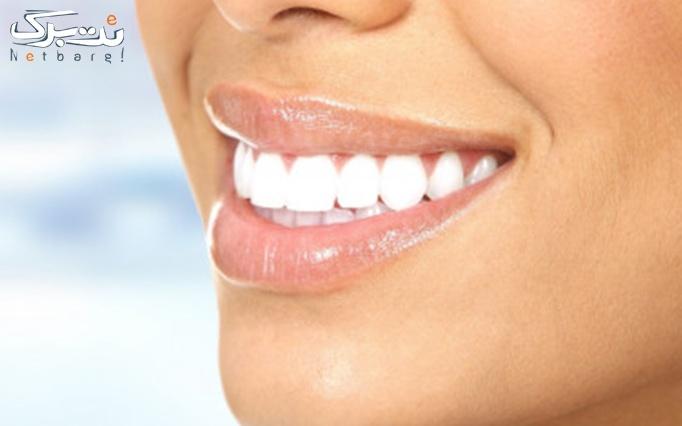 جرم گیری دندان توسط دکتر مقدس
