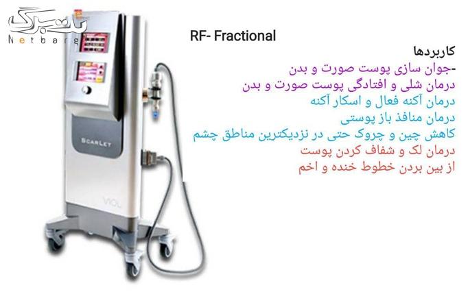 RF فرکشنال در مطب دکتر مکارم