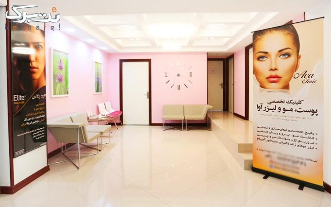 لیزر موهای زائد در درمانگاه تخصصی پوست و مو دریا