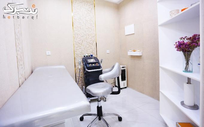 میکرونیدلینگ پوست توسط دکتر تهامی