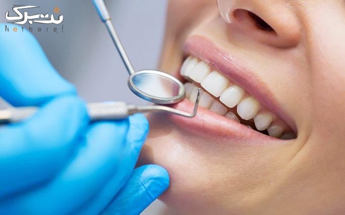 جرم گیری و بروساژ دندان توسط دکتر فروتن نژاد