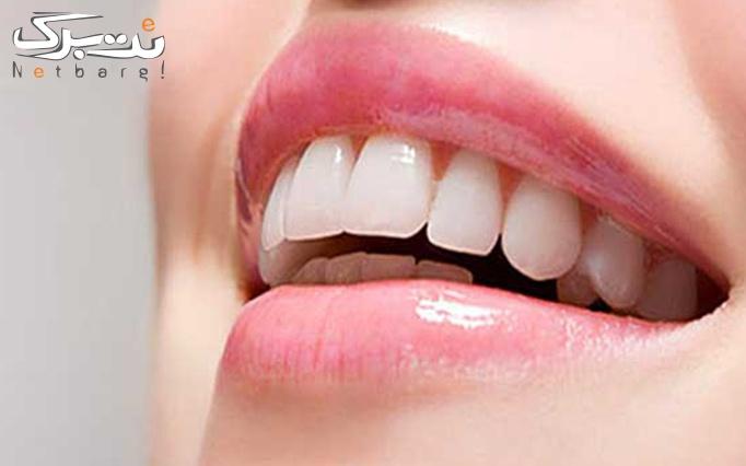 کامپوزیت دندان در مطب دکتر رجبیان