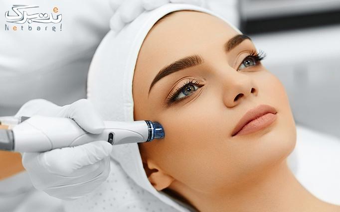میکرونیدلینگ پوست در مطب دکتر عسگرانی