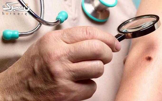 برداشتن خال در مطب دکتر حاتمی
