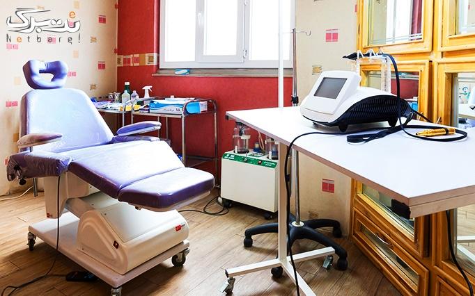 لیزر موهای زائد الکساندرایت در مطب خانم دکتر روشنی