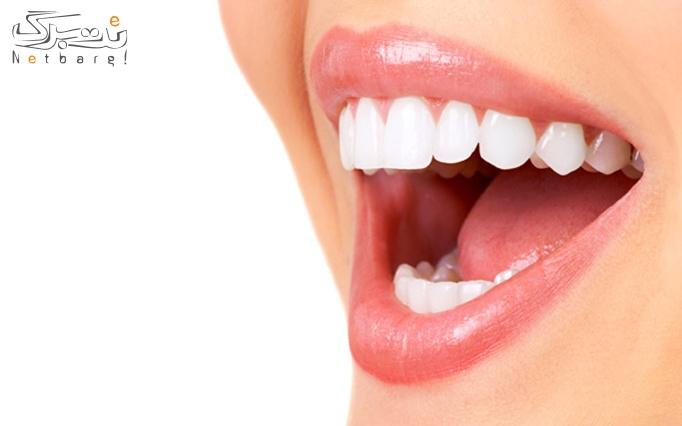 جرم گیری دندان توسط دکترآل کجباف