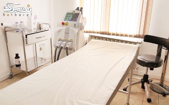 لیزر موهای زائد Elight -SHR در مطب دکتر منتصری