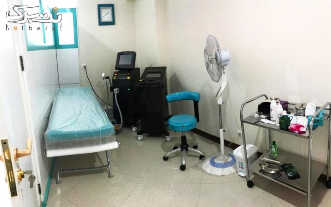 لیزر موهای زائد با الکساندرایت در مطب دکتر کاشانی