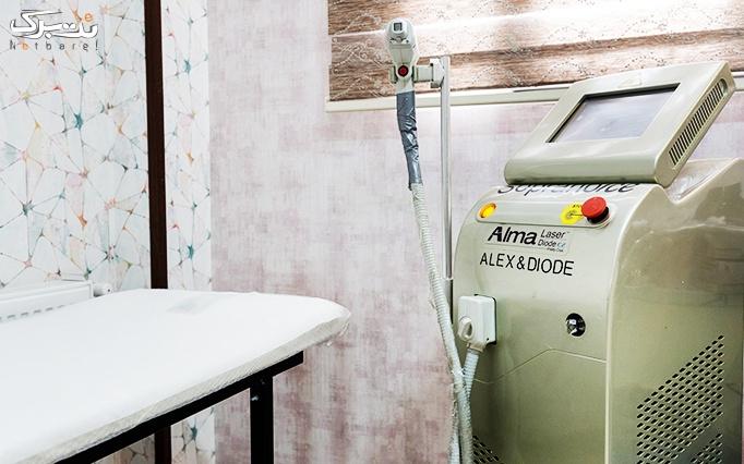 لیزر موهای زائد الکساندرایت آلما در مطب دکتر سجادی