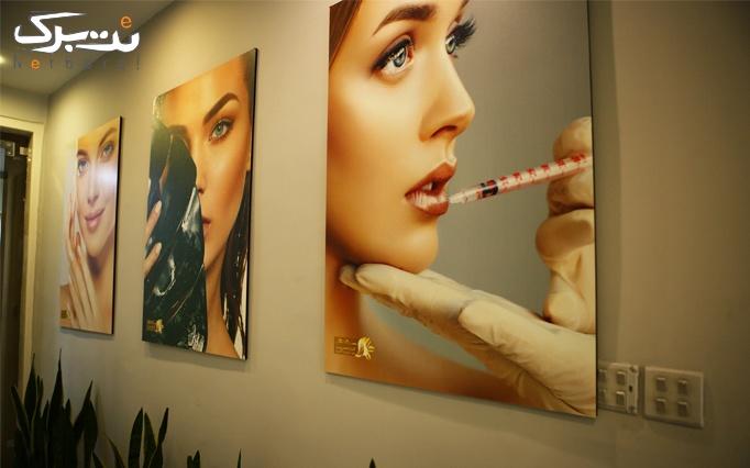لیزر موهای زائد با الکساندرایت در کلینیک سیما گل