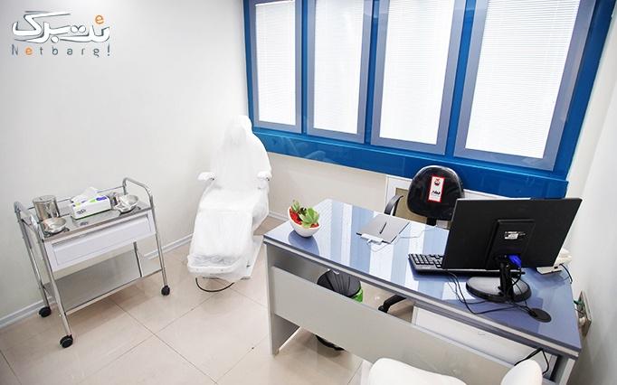 رفع موهای زائد با دایود در مطب دکتر ماهانی