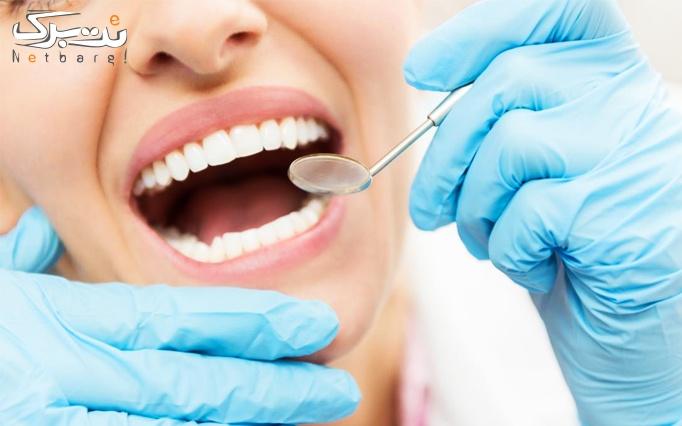 بلیچینگ و ایمپلنت دندان توسط دکتر افشاری