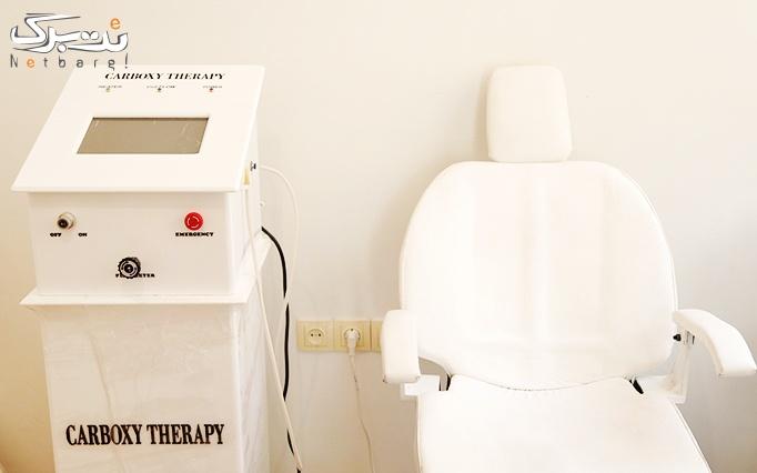 لیزر موهای زائد با الکساندرایت در مطب دکتر نصیری