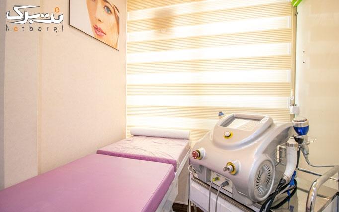 لیزر موهای زائد با الکساندرایت در مرکز ندای سلامت