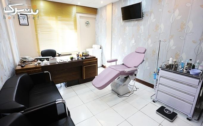 لیزر SHR در مطب دکتر متقی