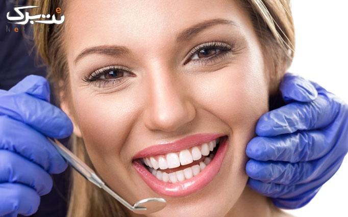 کامپوزیت ونیر دندان در مطب دکتر مرتضوی فرد