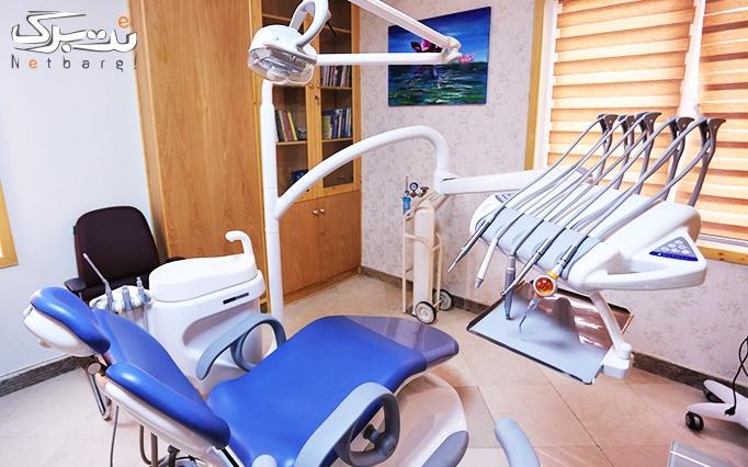 کامپوزیت ونیر دندان در مطب دکتر خلف