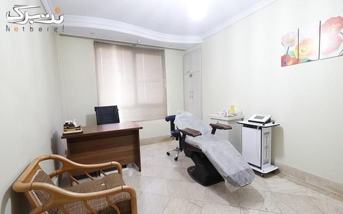 لیزر الکساندرایت کندلا 2019 در مطب دکتر قنبرپور