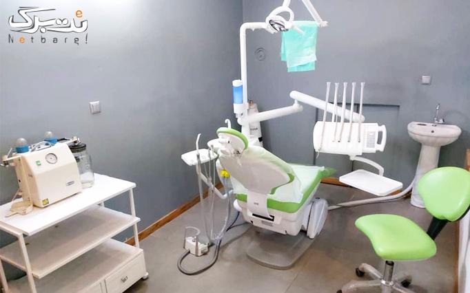 ایمپلنت کره ای دندان در مرکز دندانپزشکی مروارید