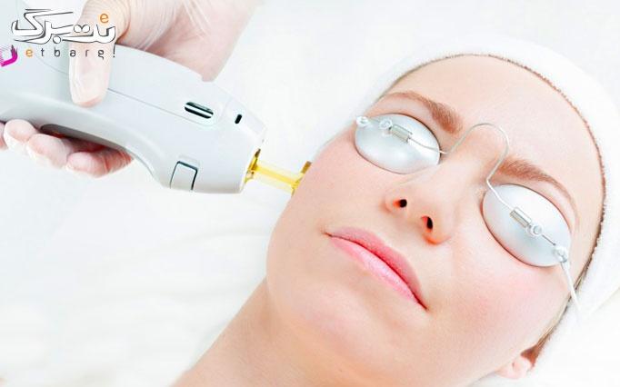 لیزر موهای زائد الکساندرایت در مطب دکتر صدفی