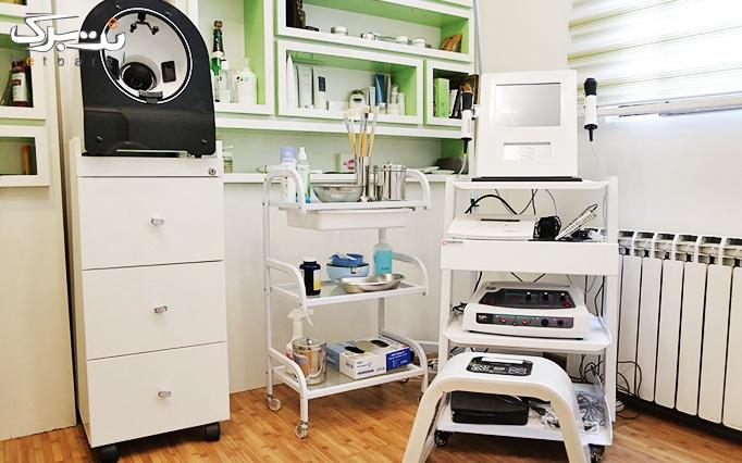 پاک کردن تاتو و خالکوبی در مطب دکتر نیازی
