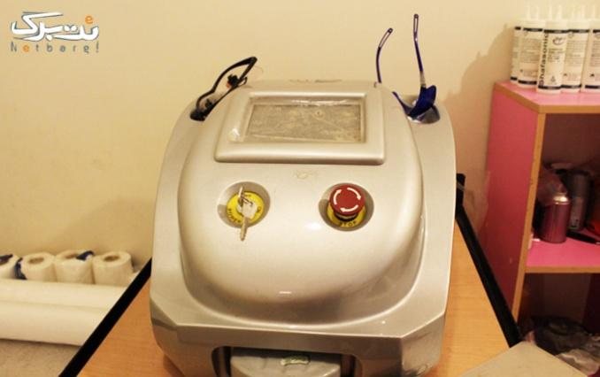 لیزر روشن کننده پوست در مطب خانم دکتر حاتمی