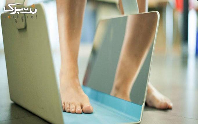 اسکن پیشرفته کف پا در مرکز پزشکی ورزشی آسمان