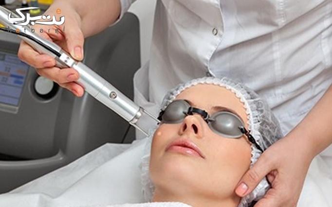 لیزر موهای زائد New دایود 2020 در مطب دکتر حسینیان