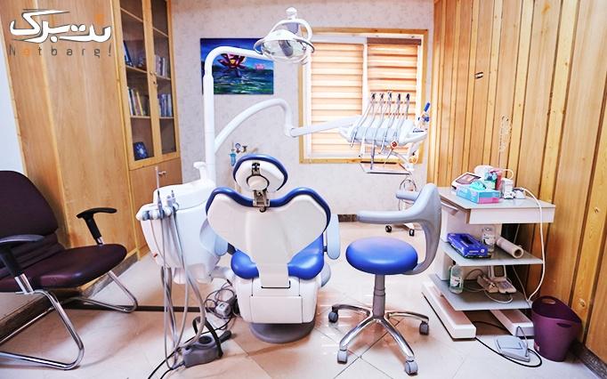 فلورایدتراپی در مطب دکتر خلف