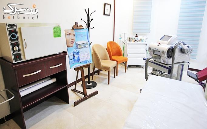 تزریق بوتاکس مسپورت با دکتر کیوان