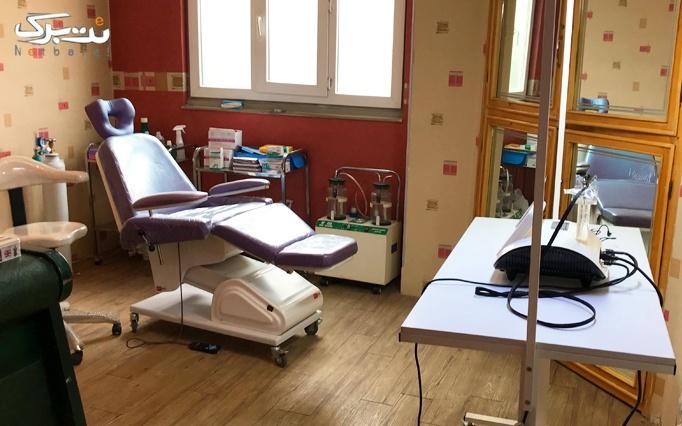 برداشتن خال با rf در مطب دکتر شجاعی