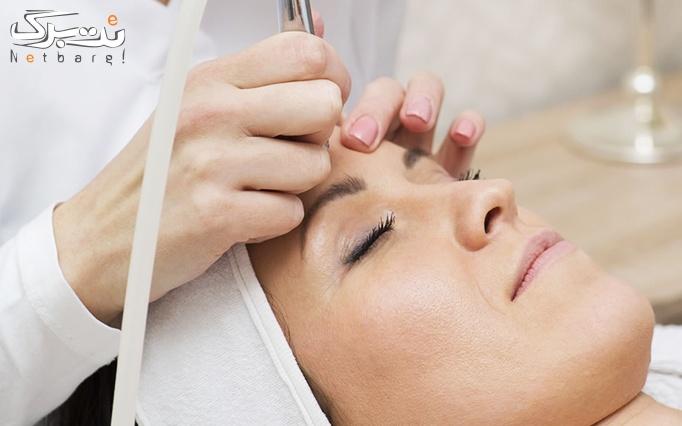 میکرودرم پاکسازی پوست در مطب دکتر سعید فر