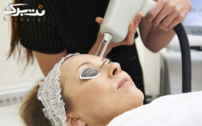 لیزر موهای زائد با ICE SHR در مطب دکتر مومنی