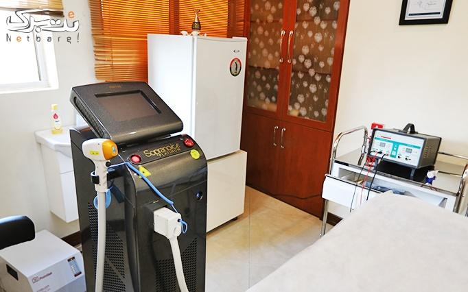 تزریق بوتاکس در مطب دکتر صالحی