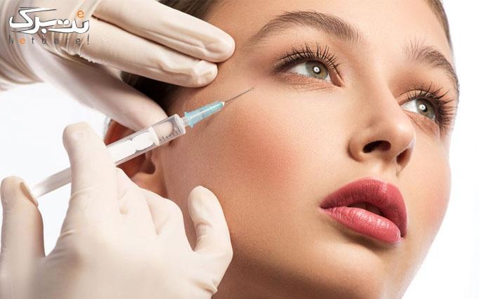 تزریق بوتاکس مسپورت در مطب دکتر کریمی