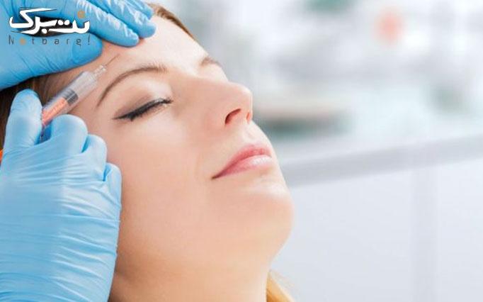 تزریق بوتاکس در مطب دکتر رزاقی
