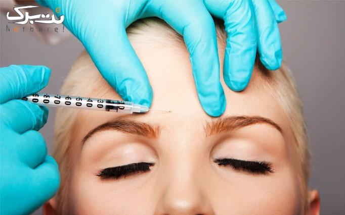 تزریق ژل در مطب دکتر رزاقی