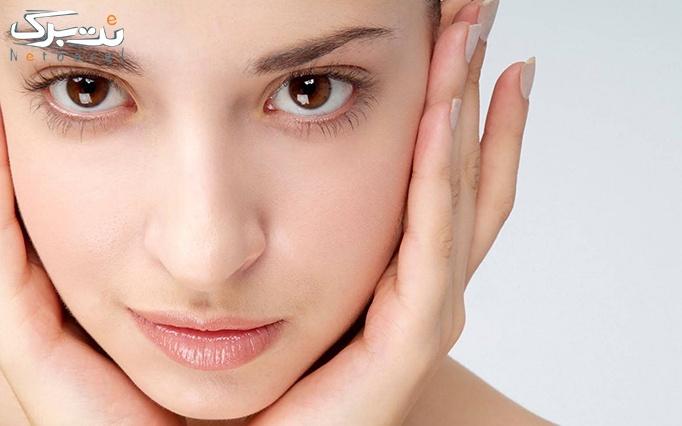 ویتامینه مو یا پاکسازی پوست در آرایشگاه نسیم صبا