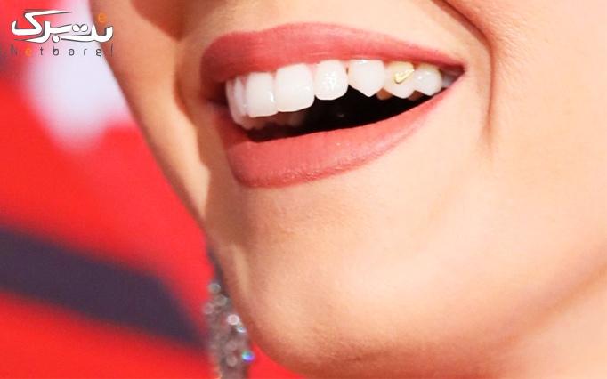 کاشت نگین دندان توسط دکتر میرمحمدی