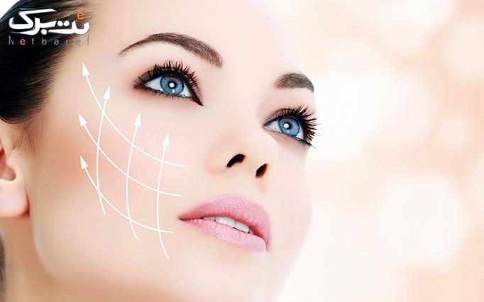 میکرونیدلینگ پوست توسط دکتر یادگاری