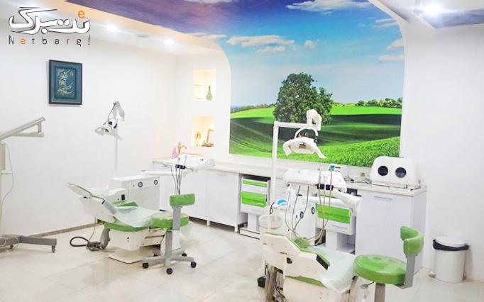 جرم گیری دندان در مطب دندانپزشکی دکتر اصغری