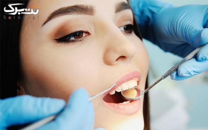 جرم گیری دندان توسط دکتر لرکی