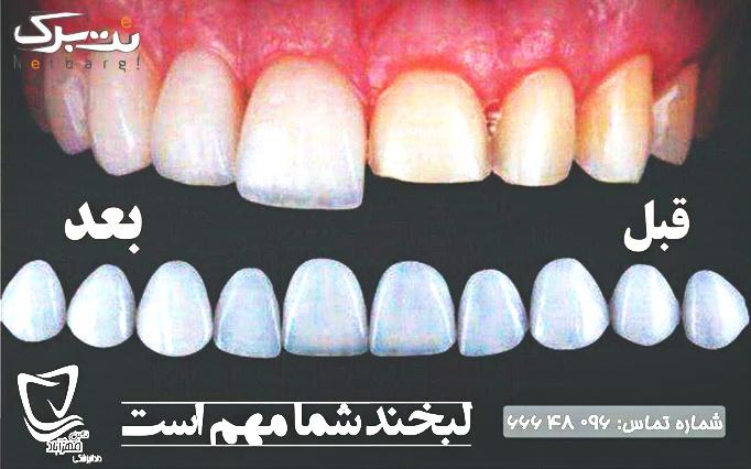 لمینت سرامیکی دندان در مطب دکتر رجبیان